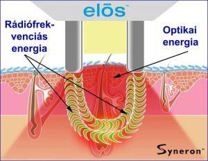 Syneron-Candela eStyle IPL szőrtelenítő gép - ELOS elv