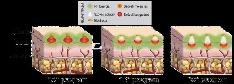 Syneron-eMatrix-programok