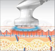 EunSung LipoZero speciális alakformáló berendezés - LED fényterápiák