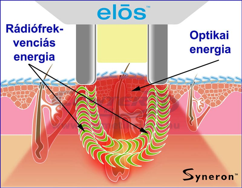 ELOS technológia